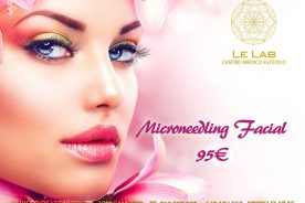 Microneedling_facial_barrio_salamanca